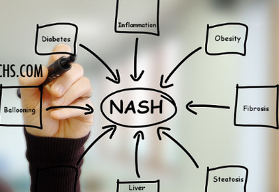 GILEAD's POSSIBLES STRATEGIES IN NASH (updated february 2019